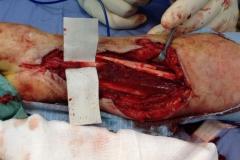 vasi e nervi (1)