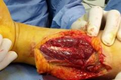 vasi e nervi (4)